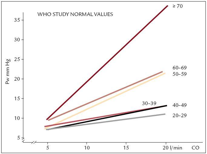 Tlak v zaklínění při zátěži u zdravých osob v korelaci se zvýšením minutového výdeje srdečního v jednotlivých věkových dekádách – WHO studie [3].