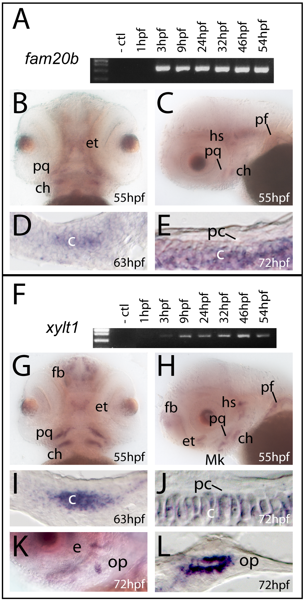 <i>fam20b</i> and <i>xylt1</i> are expressed in chondrocytes, but not in perichondrium.