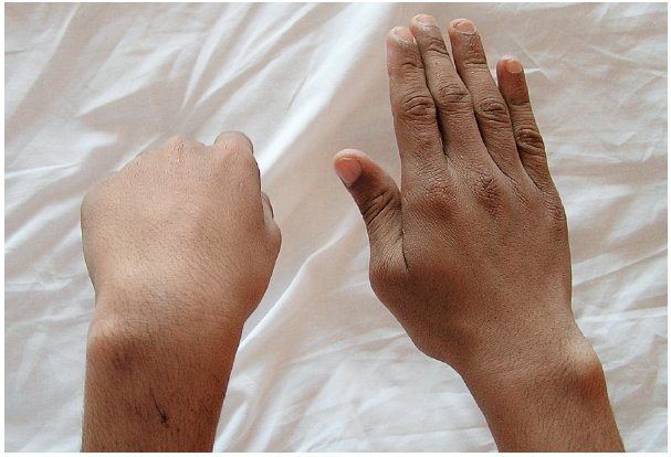 Přetrvávající léze n. radialis vlevo s plegií extenze zápěstí a prstů na podkladě komplikované fraktury diafýzy humeru ošetřené nitrodřeňovou fixací Kirschnerovými dráty u 16letého chlapce. Při revizi 5 měsíců po osteosyntéze jsme nalezli nerv zabíhající do mohutného svalku a dále do linie fraktury humeru. Rodiče i chlapec odmítli jedinou možnou rekonstrukci nervu pomocí štěpů n. suralis.