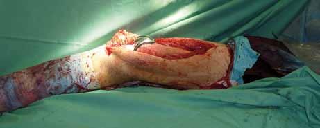 Peroperační foto – implantovaná kompozitní endoprotéza in situ.