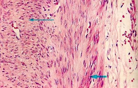 Mikroskopický obraz – leiomyom Fig. 5. Microscopic image – leiomyoma