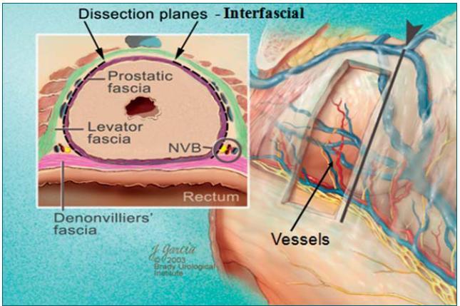 Schéma interfaciální preparace (mezi povázkou m. levator ani a povázkou prostatickou).
