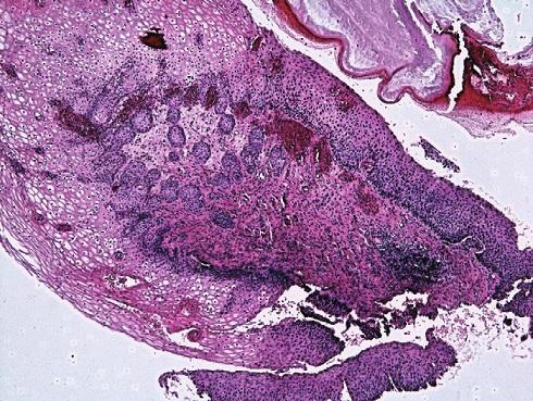 Atypické buňky z pohledu screenera. A,B: Vyřazeno s pracovní diagnózou AGC NOS. Cytopatolog hodnotí jako H SIL. C: Minibiopsie s nálezem dlaždicové metaplazie a úsekÛ CIN III.