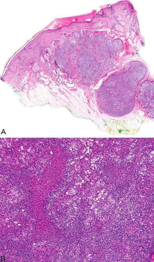 Sebaceom tvořený několika noduly v dermis (A), složenými převážně z malých, monomorfních, bazaloidních buněk; zralé sebocyty tvoří méně než 50 % samotného tumoru (B)