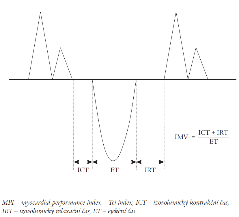 Tei index – myocardial performance index (MPI).