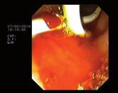 Double pig tail stent v endoskopickém obrazu. Fig. 5. Double pig tail stent in the endoscopic image.