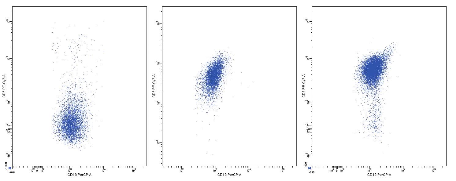 Variabilní exprese znaku CD5, dvouparametrové dot plot diagramy, CD19 na vodorovné a CD5 na svislé ose, logaritmická škála exprese na obou osách