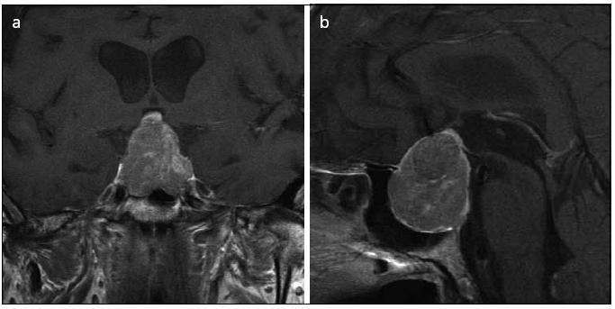 Obr. 5a, b. Symptomatický makroadenom hypofýzy způsobující kompresi chiazmatu s rozsáhlou invazí do levého kavernózního splavu (koronární a sagitální řez).