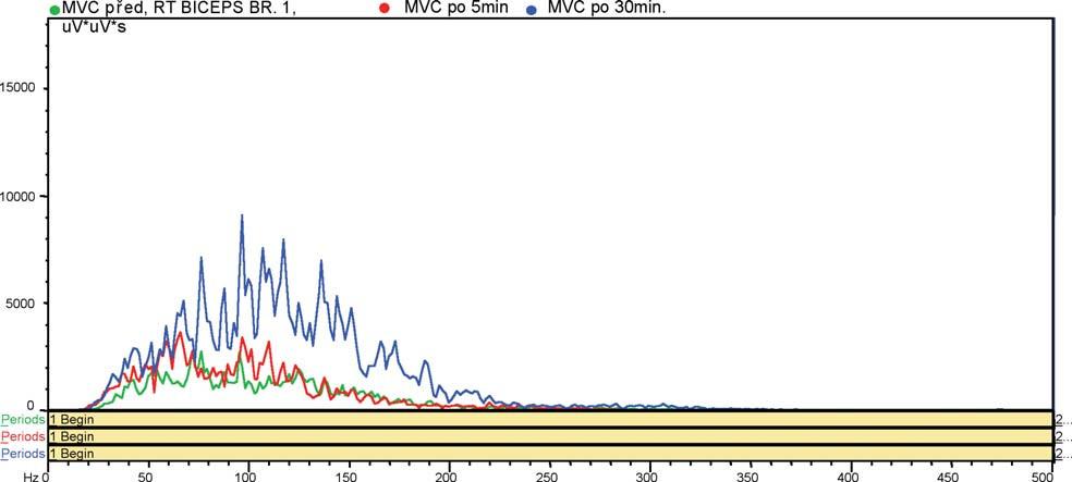 Výkonové frekvenční spektrum v průběhu MVC. Zelená křivka - před vstupem do polaria, červená křivka - 5 min. po výstupu, modrá křivka - 30 min. po výstupu z polaria.