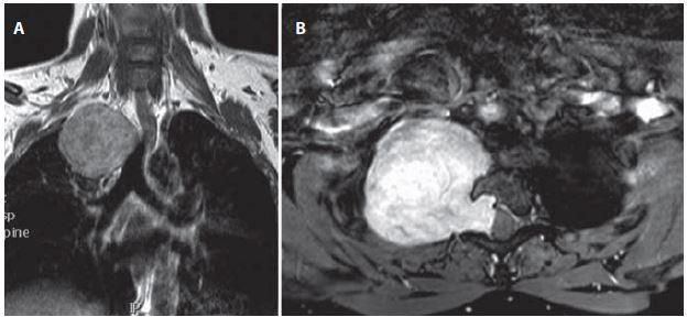 Žena (38 let) – sutkovitý nádor Th2–Th3 vpravo, před operací. Obr. 6a) MR v koronální rovině. Obr. 6b) MR v axiální rovině. Fig. 6. Woman (38 years) – dumbbell-shaped right sided tumor at level Th2–Th3, before surgery. Fig. 6a) Coronal view MRI. Fig. 6b) Axial view MRI.