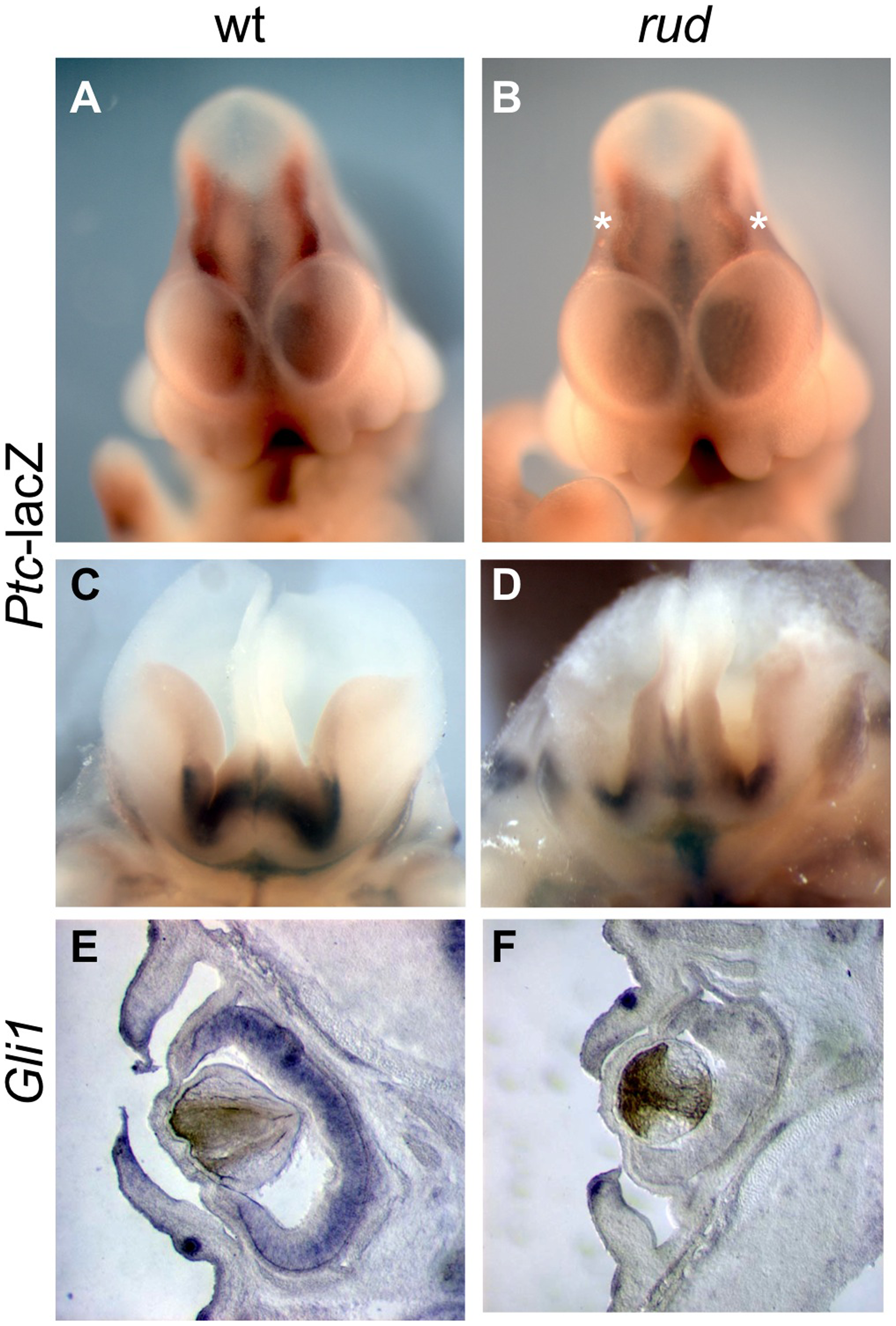 <i>Sonic hedgehog</i> signal transduction is abnormal in <i>rudolph</i> embryonic nervous system and cells.