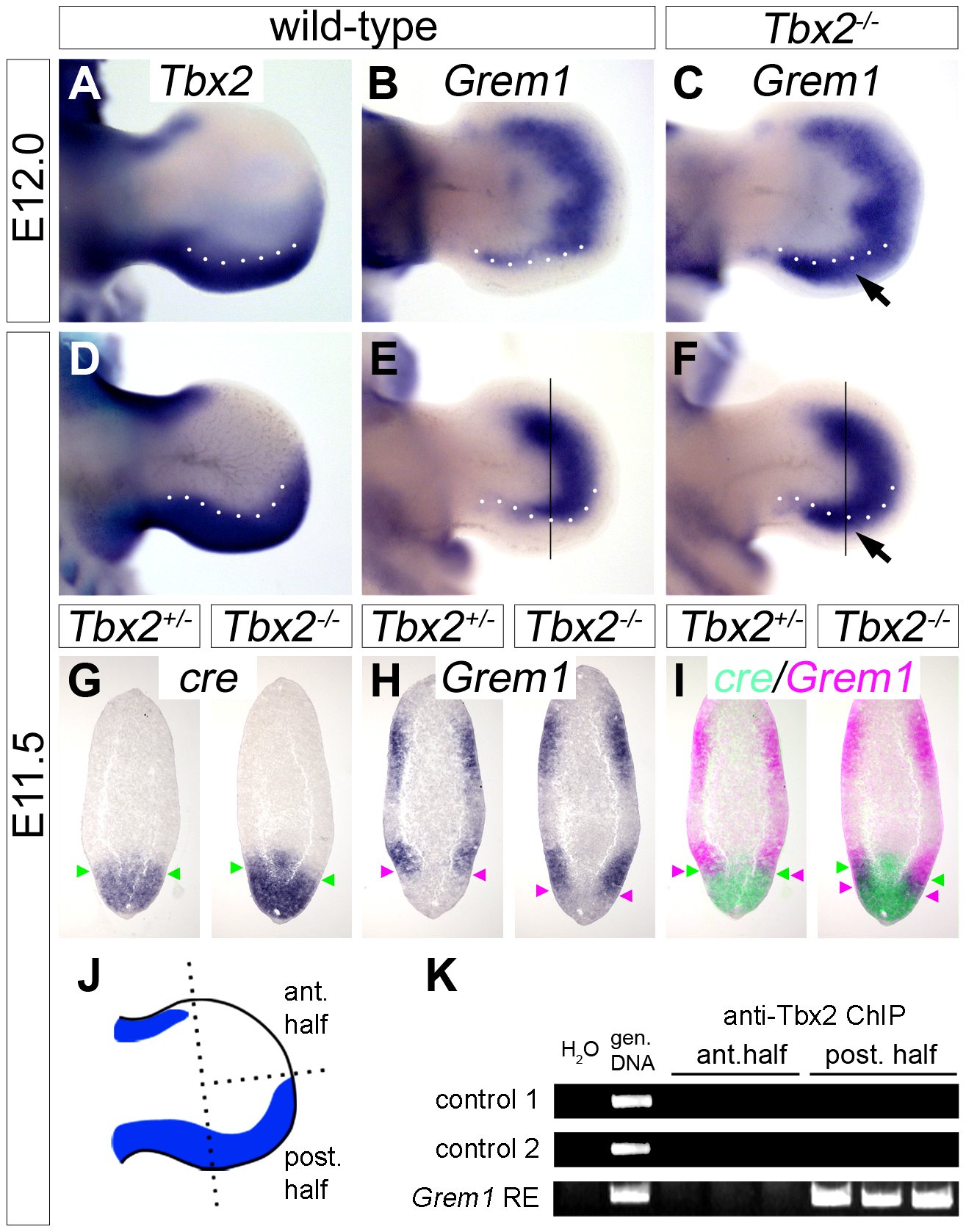 <i>Tbx2</i> directly represses <i>Grem1</i> expression in the posterior hindlimb mesenchyme.