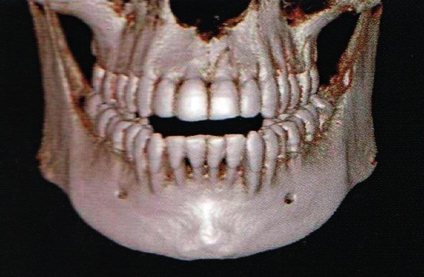 Obr. 9b CT 3D. Otevření skusu při obdobné zlomenině.