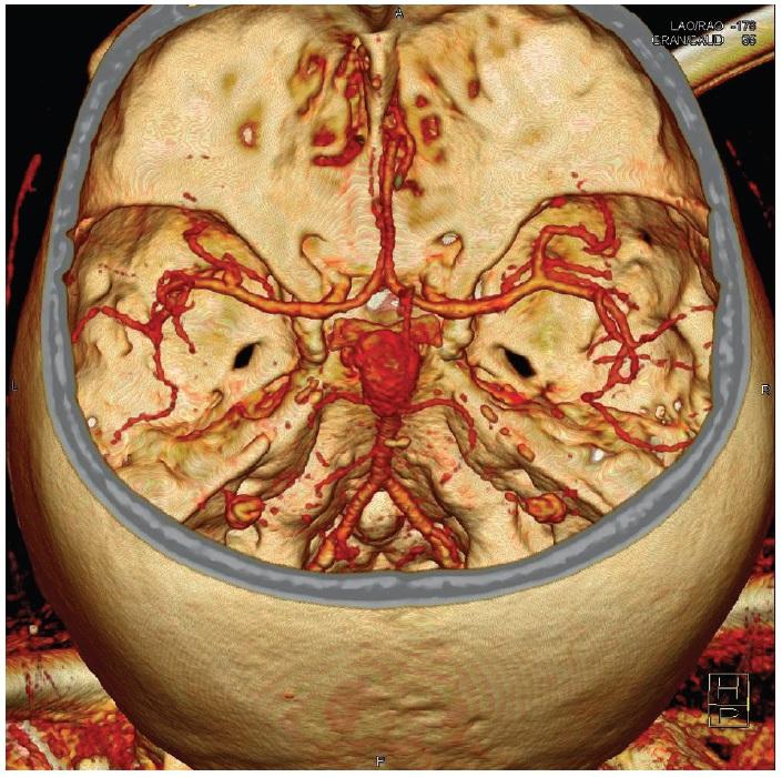 Gigantická výduť v terminální oblasti bazilární tepny na CT angiografii Fig. 1: Giant aneurysm of the basilar tip on CT angiography
