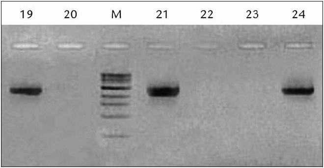 Ukážka vyhodnotenia výsledkov RT‑PCR reakcie pre PSA pred RP pomocou gélovej elektroforézy.
