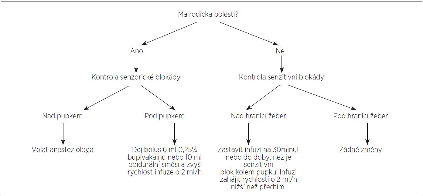 Schema 1. Management rychlosti