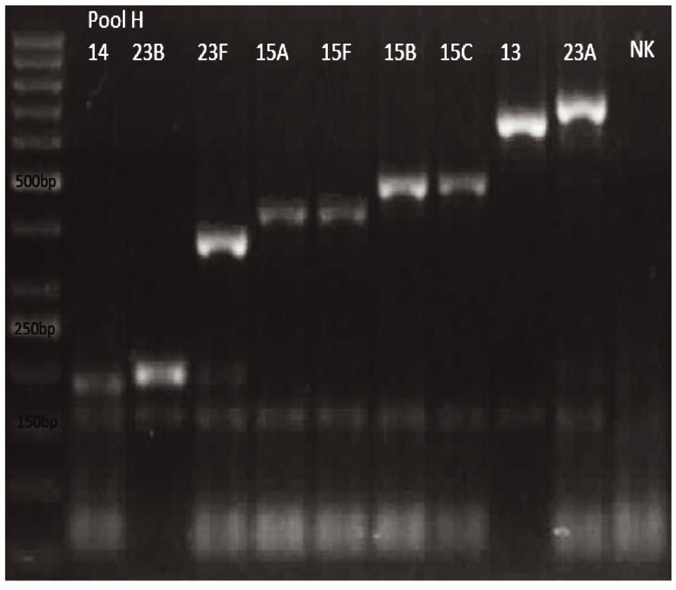 mPCR pool H Dráha 1: 50bp DNA Ladder Dráha 2: <i>S. pneumoniae</i> sérotyp 14 (189bp) Dráha 3: S<i>S. pneumoniae</i> sérotyp 23B (199bp) Dráha 4: <i>S. pneumoniae</i> sérotyp 23F (384bp) Dráha 5: <i>S. pneumoniae</i> sérotyp 15A (434bp) Dráha 6: <i>S. pneumoniae</i> sérotyp 15F (434bp) Dráha 7: <i>S. pneumoniae</i> sérotyp 15B (496bp) Dráha 8: <i>S. pneumoniae</i> sérotyp 15C (496bp) Dráha 9: <i>S. pneumoniae</i> sérotyp 13 (655bp) Dráha 10: S. pneumoniae sérotyp 23A (722bp) Dráha 11: negativní kontrola Dráha 2–10: pozitivní produkt cpsA (160bp)<br> Fig. 8. mPCR pool H Lane 1: 50bp DNA Ladder Lane 2: <i>S. pneumoniae</i> serotype 14 (189bp) Lane 3: <i>S. pneumoniae</i> serotype 23B (199bp) Lane 4: <i>S. pneumoniae</i> serotype 23F (384bp) Lane 5: <i>S. pneumoniae</i> serotype 15A (434bp) Lane 6: <i>S. pneumoniae</i> serotype 15F (434bp) Lane 7: <i>S. pneumoniae</i> serotype 15B (496bp) Lane 8: <i>S. pneumoniae</i> serotype 15C (496bp) Lane 9: <i>S. pneumoniae</i> serotype 13 (655bp) Lane 10: <i>S. pneumoniae</i> serotype 23A (722bp) Lane 11: negative control Lanes 2–10: positive product cpsA (160bp)