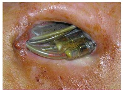 Dekubitus v kapse kardiostimulátoru s protrusí elektrod a přístroje.