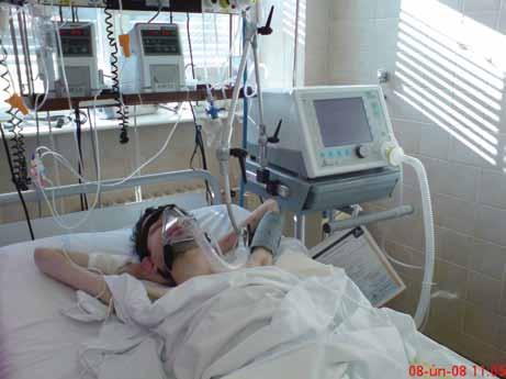 Nemocný na neinvazivní plicní ventilaci.