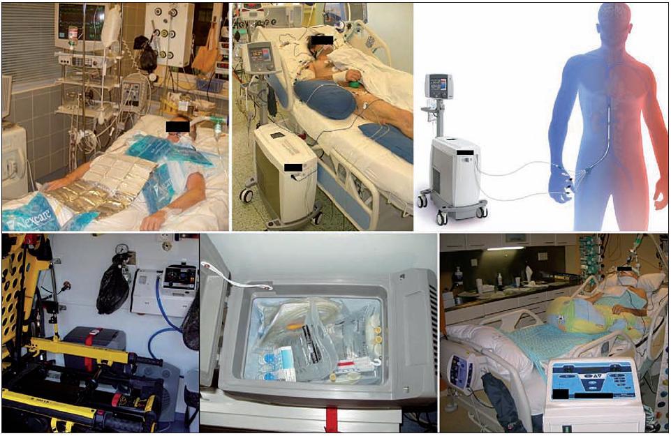 Různé ochlazovací metody Vlevo nahoře – povrchové ochlazování ledovými obklady; vpravo nahoře – reálný pacient a schéma endovaskulárního katétrového ochlazování (CoolGard 3000TM, Icy femoral cathether TM, Alsius Corp., Irvine, USA). Vlevo dole – umístění lednice ve voze zdravotnické záchranné služby a detail na obsah lednice (Little ENGEL MRFD-015 12V, Jupiter, USA) – výbava k ochlazování v přednemocniční neodkladné péči; vpravo dole – ochlazování chladicí matrací s cirkulací vody (Blanketrol III, Cincinnati Sub-Zero Products, Inc., Cincinnati, USA).