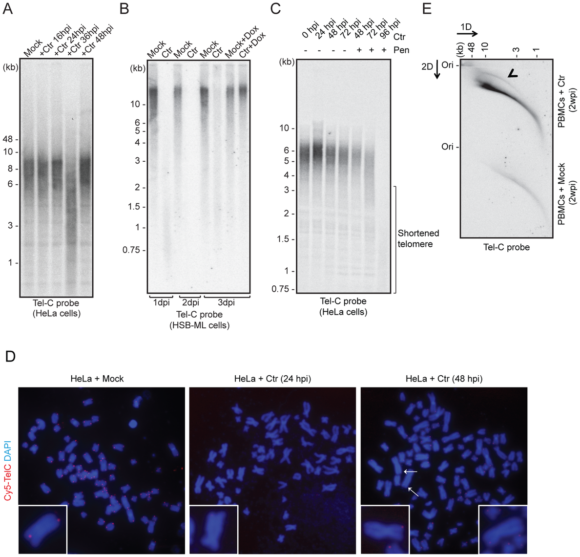 <i>C. trachomatis</i> (Ctr) infection induces telomere alterations.