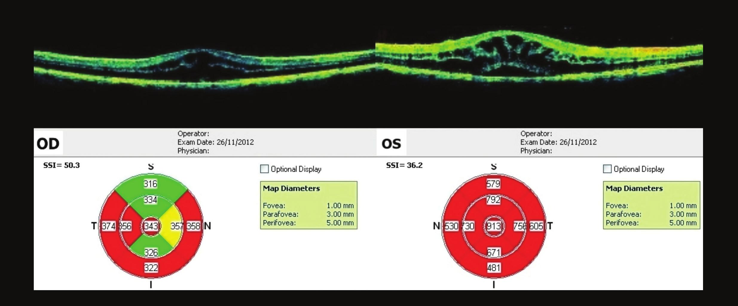 OCT makul OPL – vstupní nález CME OPL – Oboustranně difúzní ztluštění neurosenzorické sítnice a snížení reflexivity celé sítnice v souladu s cystickou přestavbou, linie RPE kontinuální