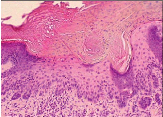 Hypertrofický typ AK – akantoticky zhrubnutá epiderma s atypiami keratinocytov a výraznou parakeratózou a hyperkeratózou na povrchu (H&E, 400x).