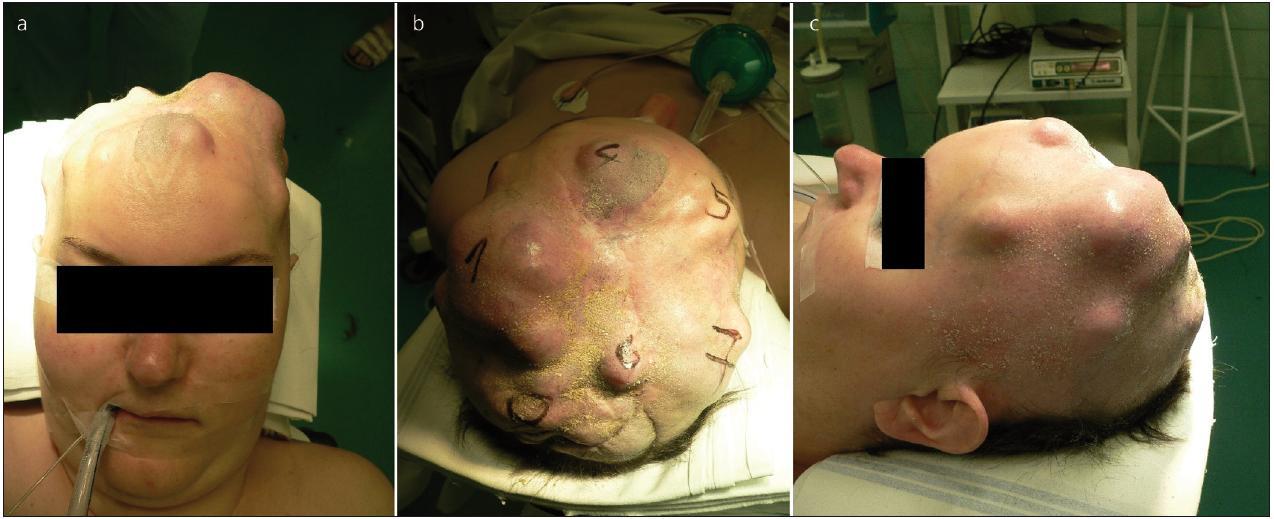 Pacientka před jednou z exstirpací v podkoží recidivujícího meningeomu.