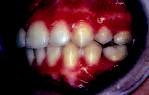 Obr. 6c. Intraorální pohled po sejmutí pevného ortodontického aparátu.