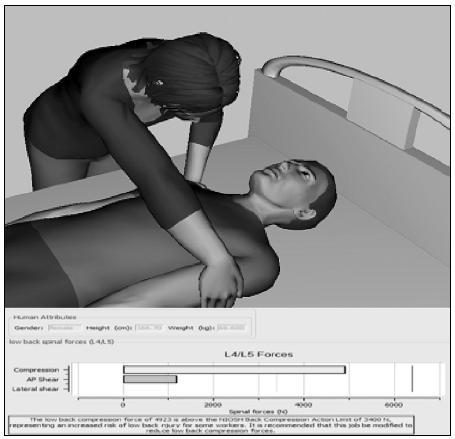 Pracovnice polohuje pacienta v oblasti ramen o vynakládané síle 511,2 N při manipulaci s pacientem o hmotnosti 65,6 kg