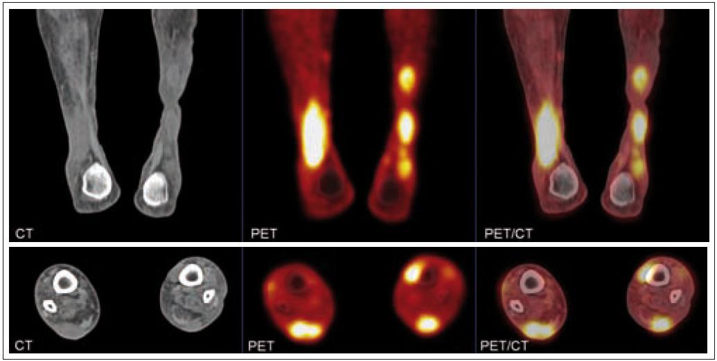 Zobrazení ložisek nekrobiotického xantogranulomu na PET/CT.  Na první sérii zobrazení jsou vidět v koronárním řezu četné infiltráty v distální části obou bérců. Největší infiltrát v distální části pravého bérce dorzálně asi 3,5 × 2 cm, v kraniokaudálním rozměru až 10 cm. Na druhé sérii zobrazení je infiltrát v transverzálním řezu, hloubka největšího infiltrátu je až 2 cm.