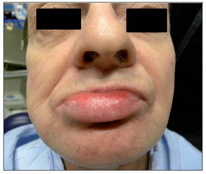 Sarkom jazyka (9. den po operaci)