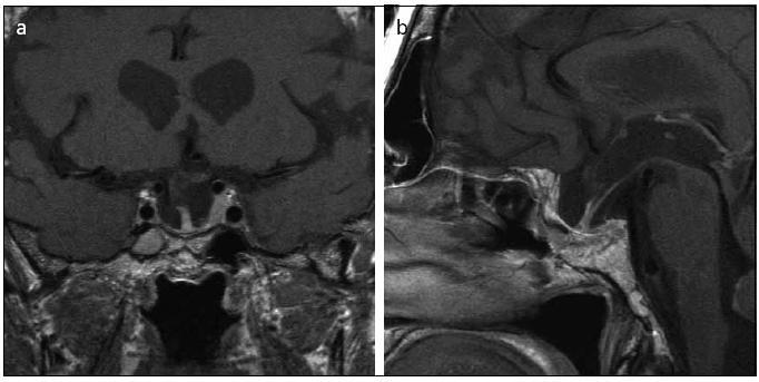 Obr. 7a, b. MR 16 měsíců po operaci prokazující pouze reziduální adenom hypofýzy v levém kavernózním splavu (koronární a sagitální řez). Dle kontrolních MR nedochází k růstu rezidua adenomu v kavernózním splavu. Pacienta budeme nadále sledovat dle MR. V případě změny nálezu bychom doporučovali radiochirurgické ozáření.