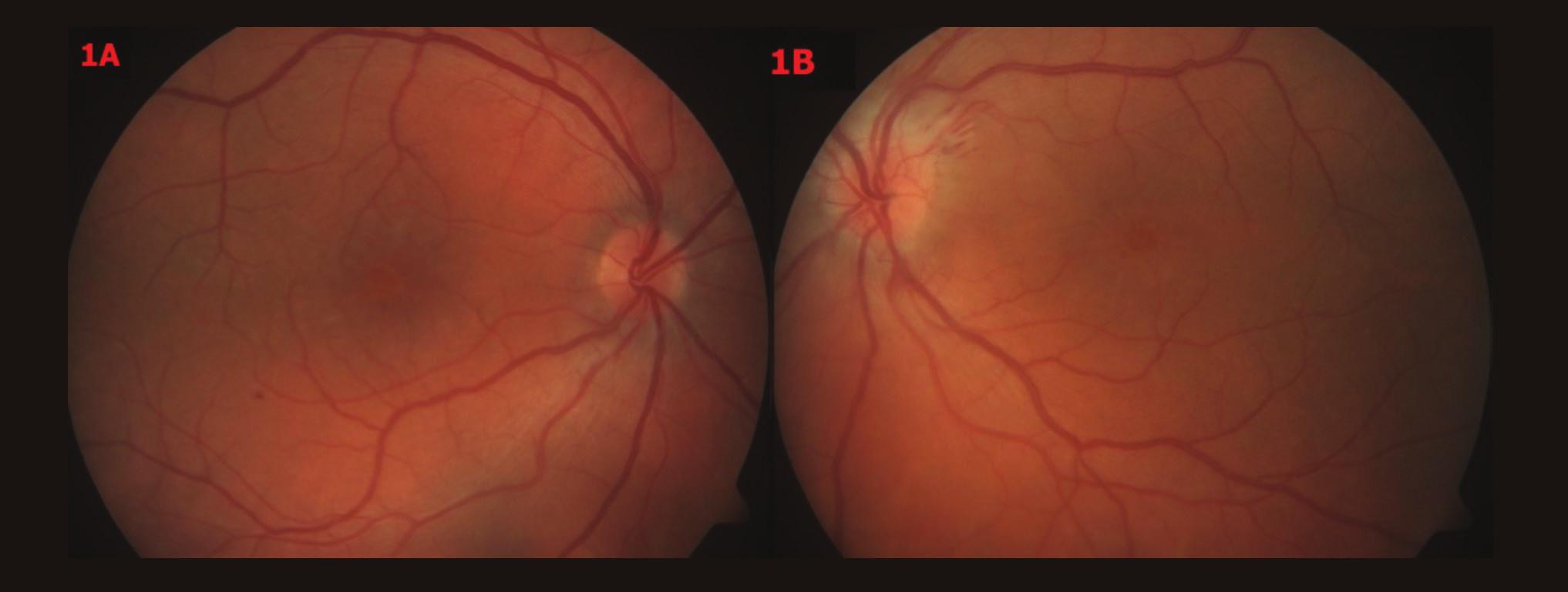 Barevné fotografické snímky fundu OPL – vstupní nález 1A – OP – papila okrouhlá, ohraničená, růžová, v centru CME, 1B – OL – papila neostře ohraničená, prosáklá, bledší než vpravo, lehce nad niveau, parapapilárně třískovité hemoragie u č. 2, v centru CME, oboustranně artérie užší, tvrdších reflexů, vény vinuté, dilatované, oboustranně ve střední periférii ojediněle tečkovité hemoragie
