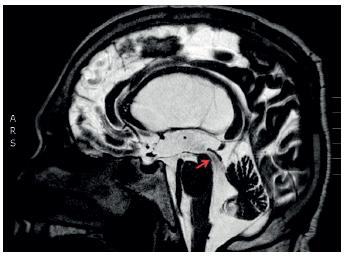 Na magnetické rezonanci v T2 vážené sekvenci v sagitálním řezu je zobrazena situace u komunikujícího hydrocefalu, kde není patrná obstrukce v komorovém systému a Sylviův mokovod je volně průchodný (označeno červenou šipkou)