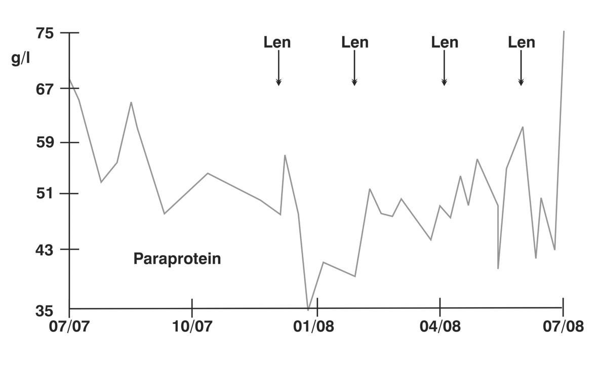 Hladina monoklonálního proteinu/paraproteinu u případu č. 2 při léčbě lenalidomidem