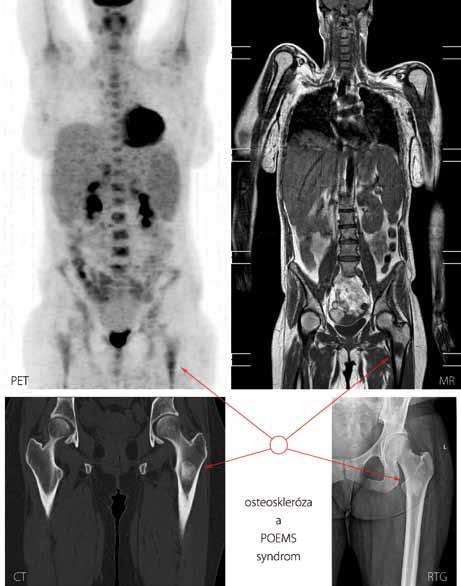 Součástí diagnostických kritérií POEMS syndromu je i průkaz osteosklerotického ložiska. Zde vyobrazeno sklerotické ložisko v oblasti proximální části kosti stehenní vlevo u případu 7 metodami PET, MR (magnetická rezonance, T1 vážená sekvence), CT a konvenční radiografií.