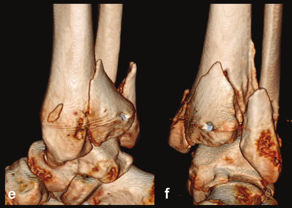 Odlomená zadní hrana tibie – Typ 2 (posteriorní) a, b, – rtg snímky ukazující zlomeninu fibuly Weber B, rupturu deltového vazu se subluxací talu laterálně a dorzálně, odlomení velké zadní hrany nesoucí téměř 50 % kloubní plochy distální tibie, c – transverzální CT řez, d – sagitální CT řez, e – 3D CT rekonstrukce, dorzální pohled, f – 3D CT rekonstrukce, mediální pohled. Z rekonstrukcí je patrné, že je odlomena zadní hrana v celé šíři včetně dorzální poloviny incisury tibie, mediálně zasahuje lomná linie až k sulcus malleolaris, ten je však intaktní