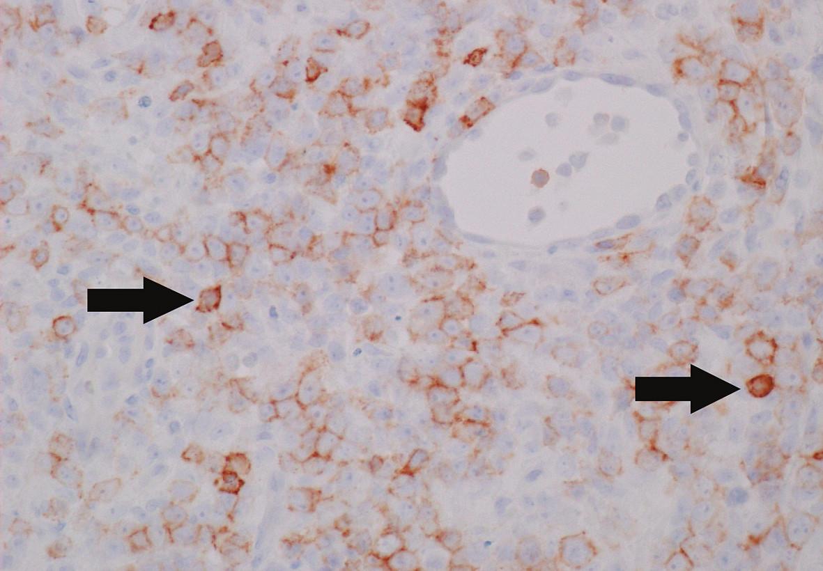 Některé nádorové buňky pozitivní při průkazu antigenu CD56 (šipky) (zvětšení 400krát). Jedná se o imunohistochemické vyšetření.