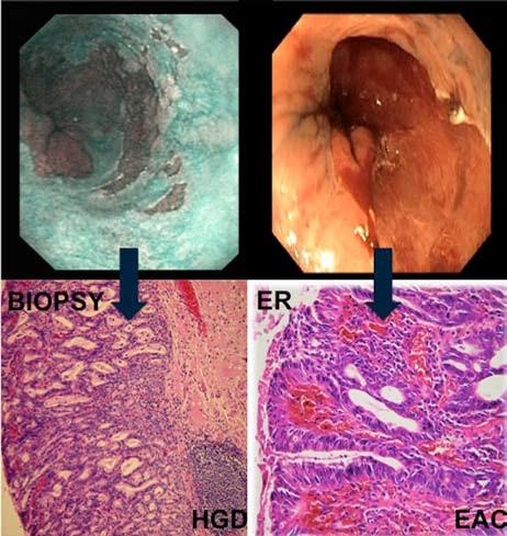 Patologická léze 0-IIb dle Pařížské klasifikace s HGD v biopsiích. Ve vzorku z ER byl potvrzený časný adenokarcinom s hlubokou slizniční invazí. Fig. 8. Flat lesion 0-IIb with HGD on biopsy and EAC in ER specimen.