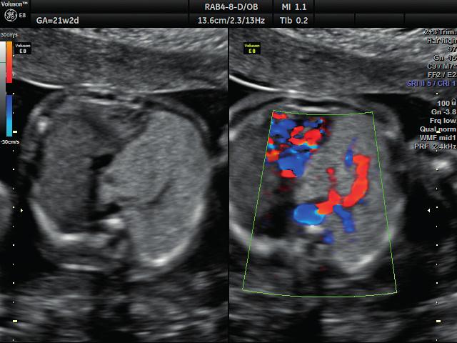 Ultrazvukové vyšetření ve 21. týdnu těhotenství – dopplerovské zobrazení přívodné cévy Zobrazení aberantní systémové přívodné cévy vyživující sekvestr