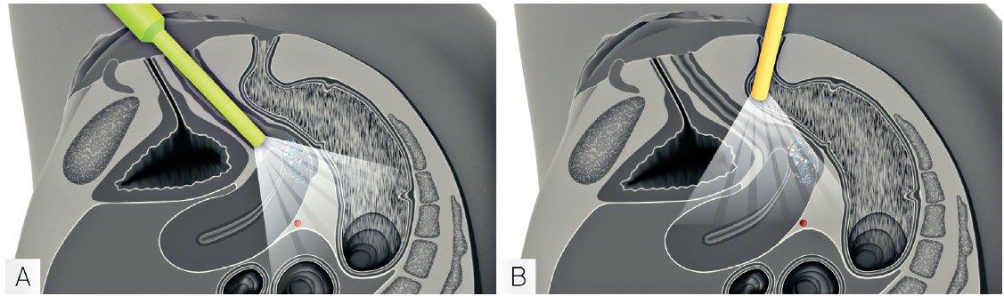 Ultrazvukové vyšetření lokálního rozsahu zhoubného nádoru děložního hrdla (vyšetření endoluminální sondou)