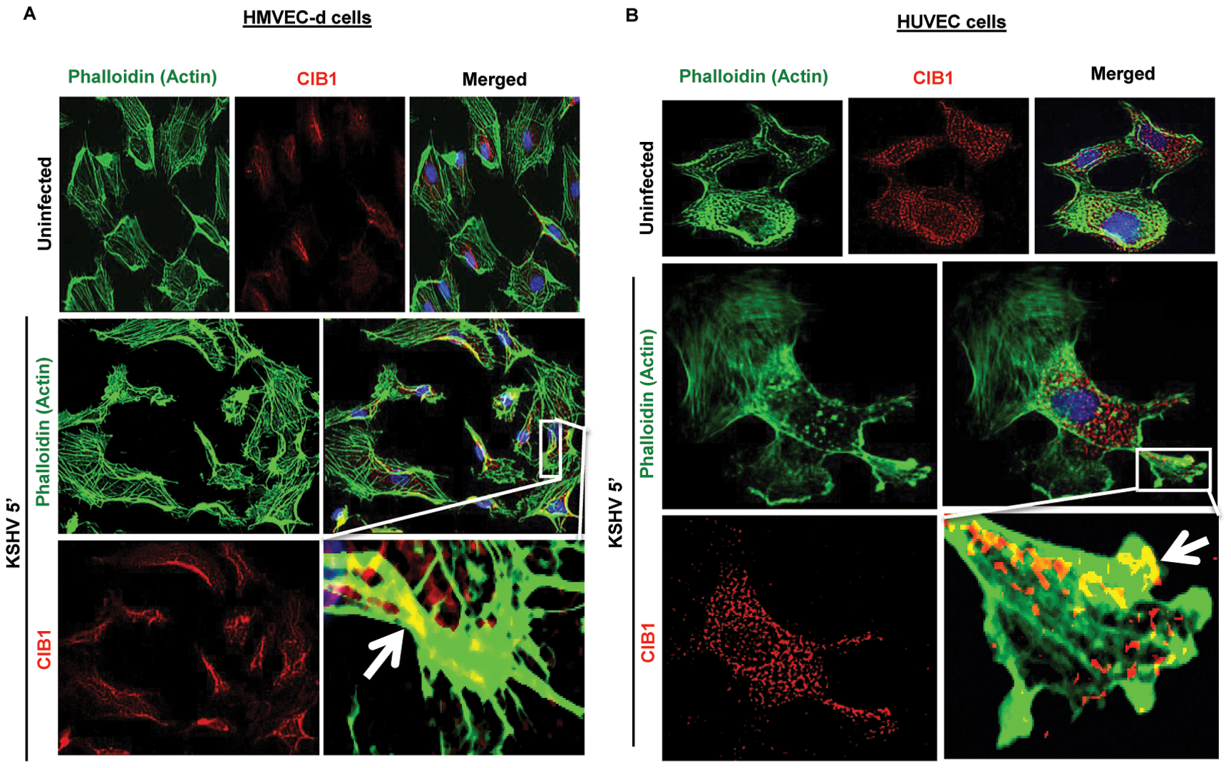 CIB1 association with actin protrusions during <i>de novo</i> KSHV infection in endothelial cells.