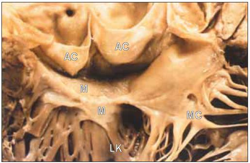 Aortální výtokový trakt v případě subvalvulární aortální stenózy. Membrána spojuje přední cíp mitrální chlopně s mezikomorovou přepážkou pod aortální chlopní.