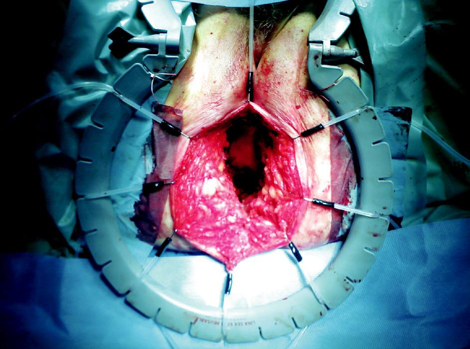 Defekt v oblasti perinea Fig. 2. Perineal defekt