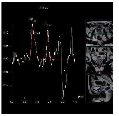 MR spektroskopie – elevace hladiny cholinu a pokles citrátu v levém laloku prostaty