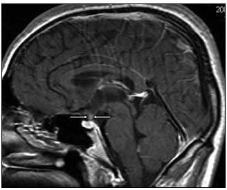 Kulovité zbytnění, infiltrace stopky hypofýzy při Langerhansově histiocytóze, se sycením kontrastní látkou. Sagitální rovina zobrazení, T1 vážený MR obraz po aplikaci k.l.