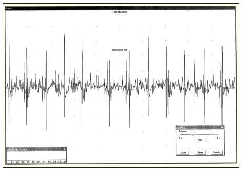 Elektromyografický nález u pacienta s parézou v oblasti pravého dolního břišního kvadrantu. Neurogenní změny v oblasti m. rectus abdominis vpravo.
