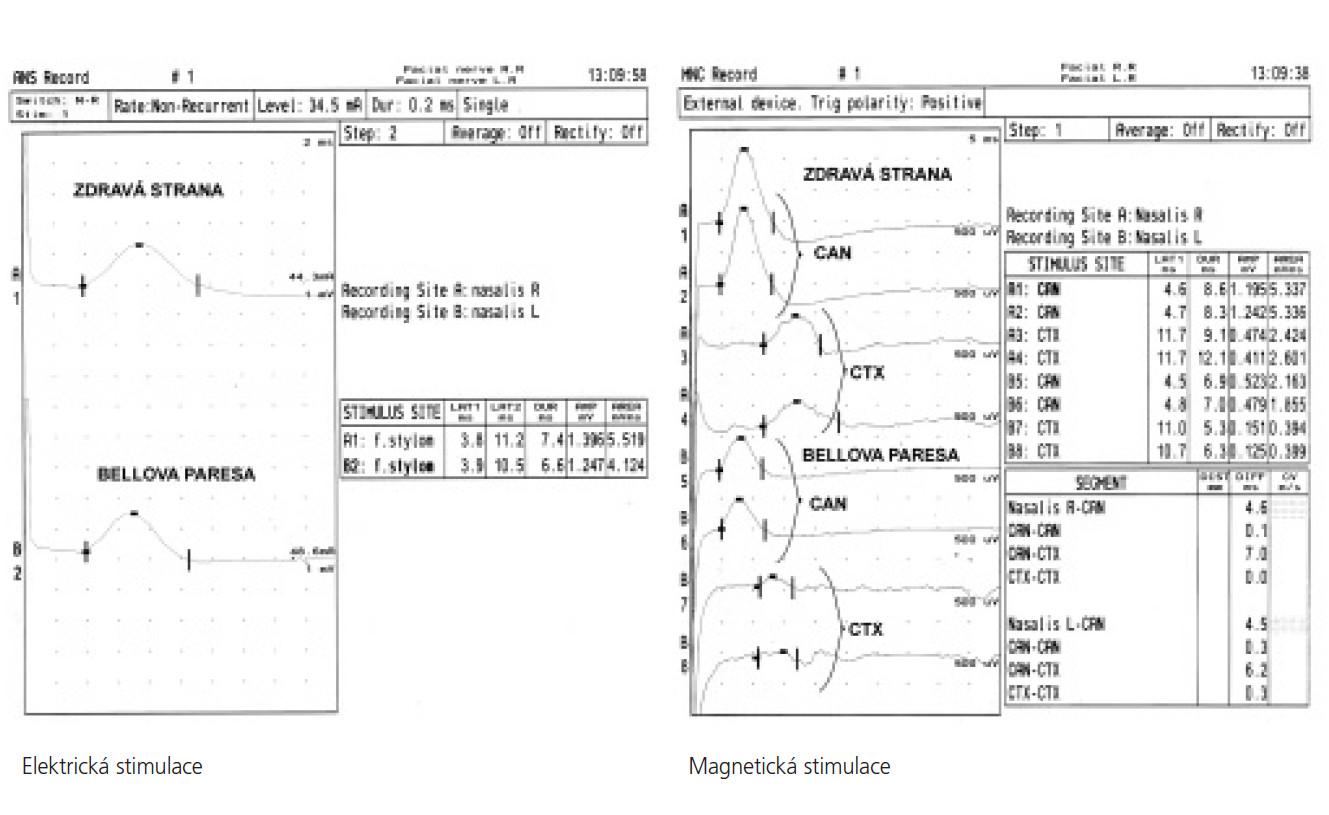 Porovnání elektrické a magnetické stimulace u Bellovy parézy vlevo. MEP vlevo prokazují výrazný pokles amplitudy CMAP při kanalikulární i kortikální stimulaci v porovnání s přímou elektrickou stimulací. Odpovídá lokální hypoexcitabilitě motorických vláken v canalis facialis.