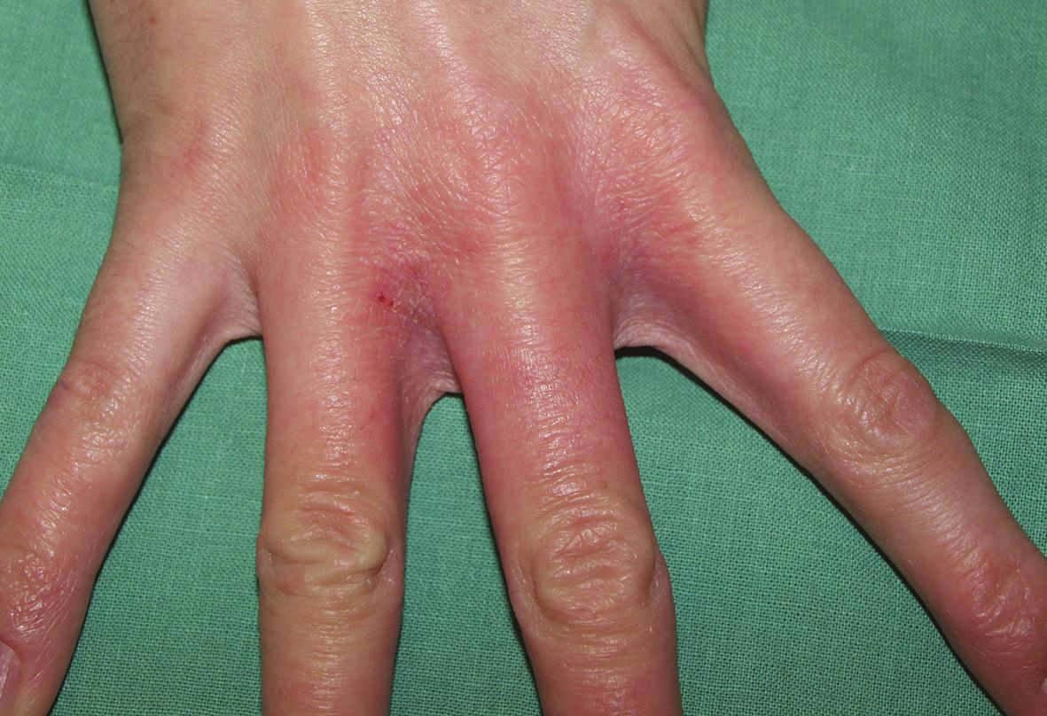 """Iritační reakce v meziprstí rukou (""""mokrá práce"""", saponáty)"""